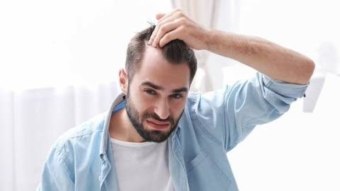 Why Millennials are losing their hair